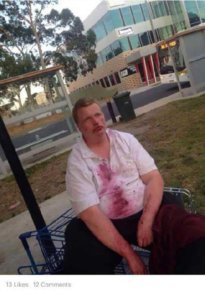 Νεαρό κορίτσι χτύπησε άνθρωπο με σύνδρομο down και ανέβασε το βίντεο στο internet….