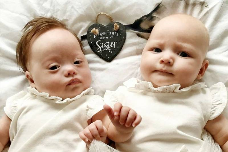 Twins described as 'one in a million' after one is born with Down's syndrome
