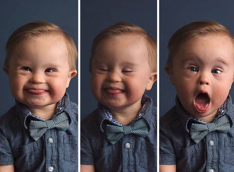 "Kid Gets Rejected From Ad Campaign ""Because He Has Down's Syndrome"", Mom Fights Back"