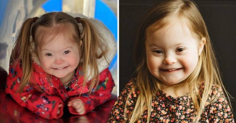 Adorable toddler with Down's Syndrome ready to take the modelling world by storm
